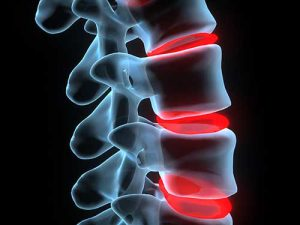 Non-Surgical Spinal Decompression - Greenwich Kinetics-Dr