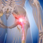 Sciatica Treatment Protocol Yields Highly Successful Outcomes With Long-Lasting Results