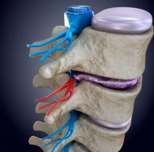 Spinal nerve compressed by bulging disc